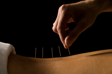 Acupuncture, Lichfield, Tamworth, Sutton Coldfield, Dry Needling