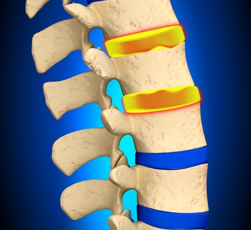 Facet Joints, Lumbar Spine, Lichfield, Sutton Coldfield, Physiotherapy