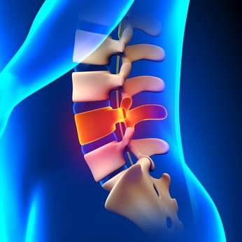 Sciatica, Lichfield, Sutton Coldfield, Physiotherapy, Walsall