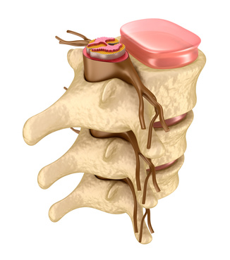 Back Pain Causes, Lichfield, Physiotherapy, Walsall, Sutton Coldfield
