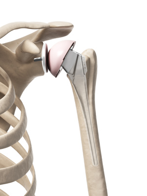 Shoulder Replacement, Lichfield, Physiotherapy, Tamowrth, Rugeley, Walsall, Cannock, Sutton Coldfield