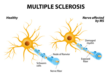 MS, Multiple Sclerosis, Lichfield, Tamworth, Cannock, Walsall, Sutton Coldfieldu