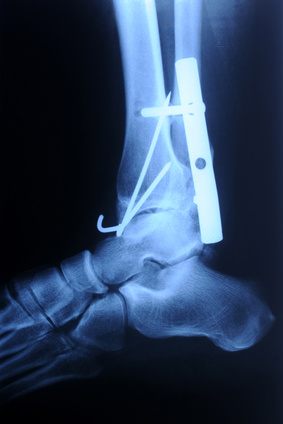 Lichfield, Ankle Surgery Rehabilitation, Physiotherapy, Sutton Coldfield