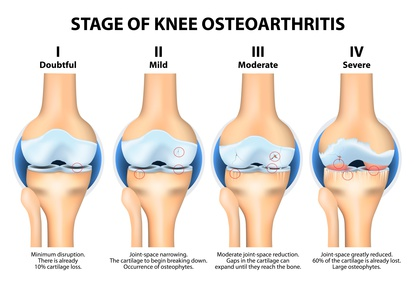 Osteoarthritis, Lichfield, Physiotherapy, Tamworth, Cannock, Sutton Coldfield, Walsall, Rugeley