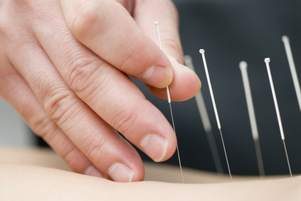 Acupuncture, Lichfield, Physiotherapy, Sutton Coldfield, Acupuncture