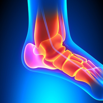 Ankle Replacement, Lichfield, Physiotherapy, Ankle Fusion, Sutton Coldfield, Tamowrth, Cannock, Rugeley
