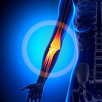 Golfer's Elbow, Tennis Elbow, Lichfield, Walsall, Cannock, Sutton Coldfield, Physiotherapy