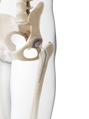 Hip Replacement, Physiotherapy, Lichfield, Walsall, Sutton Coldfield, Tamworth, Cannock, Rugeley